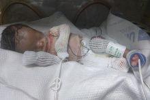 Bayi tanpa kulit cuba diselamatkan