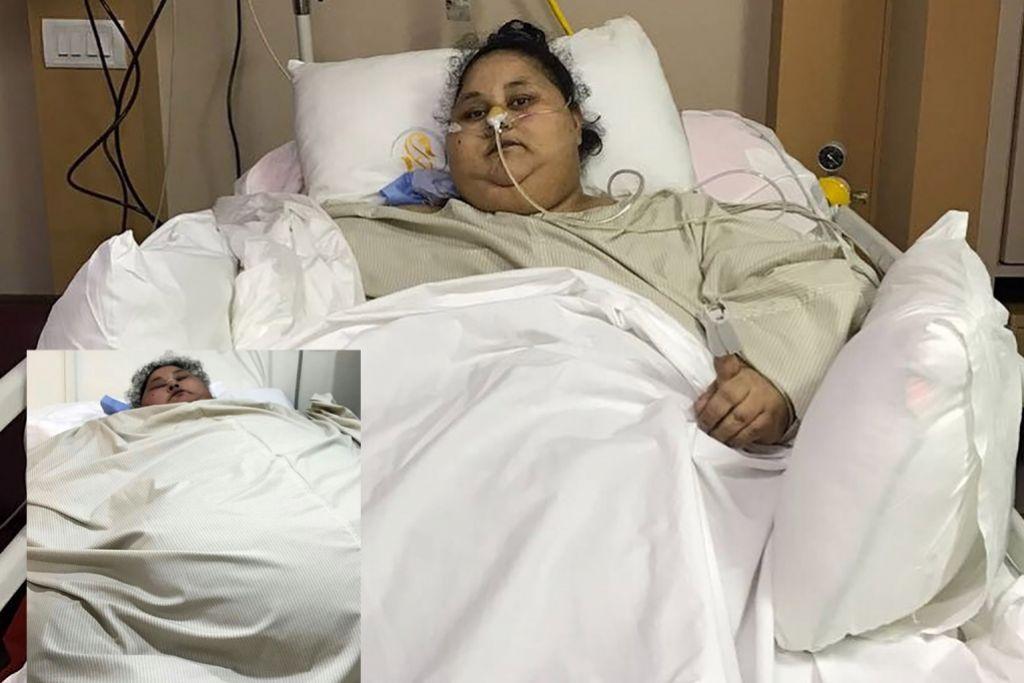 Wanita paling gemuk dunia hilang 100 kg selepas dibedah